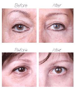 Mirakel Eye Lift- серум за корекция на зоната под очите